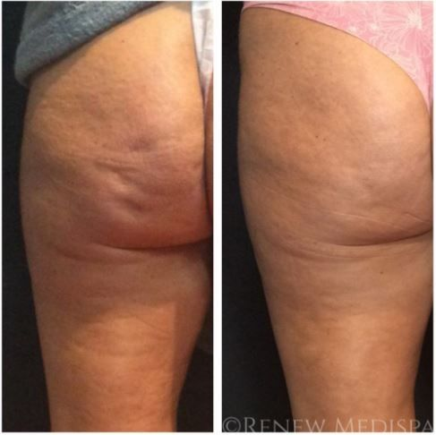Cellulite Treatment And Removal Derry Nh Renew Medispa