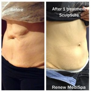 SculpSure Windham Before and After Picture