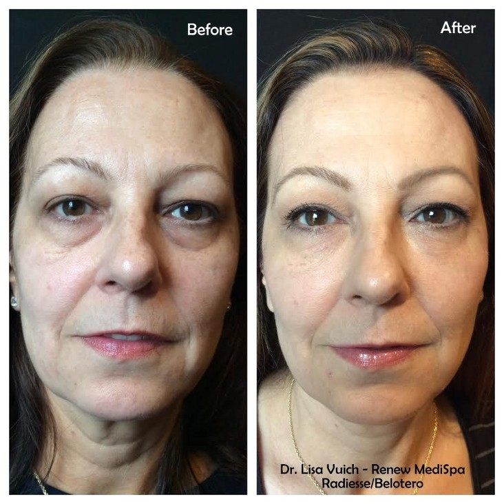 Dermal Fillers Windham, NH - Smooth Lines & Wrinkles | Renew