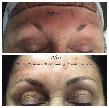Permanent Makeup Windham, NH | Renew MediSpa
