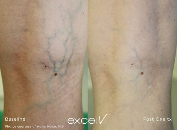 Spider Vein Treatment Windham - Before and After