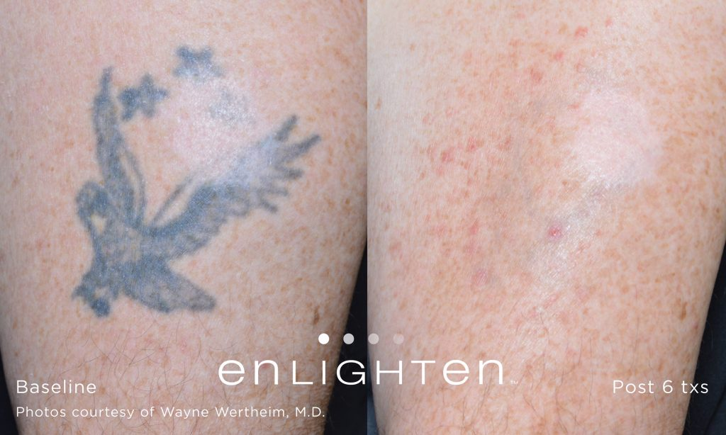Tattoo Removal Windham, NH - Get Rid of Old Tattoos | Renew