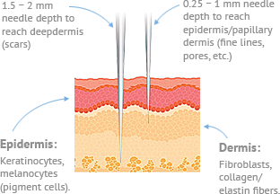 Microneedling Windham Diagram