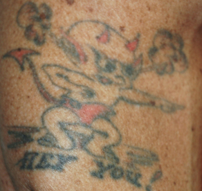 Tattoo Removal  1039