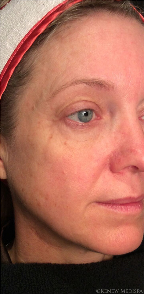 Ultherapy And Profound Rf  972