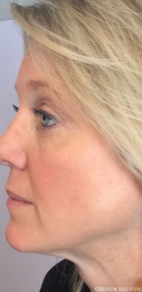 Ultherapy And Profound Rf  975