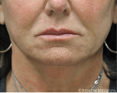 Ultherapy And Profound Rf Case 8 Windham Nh Renew Medispa