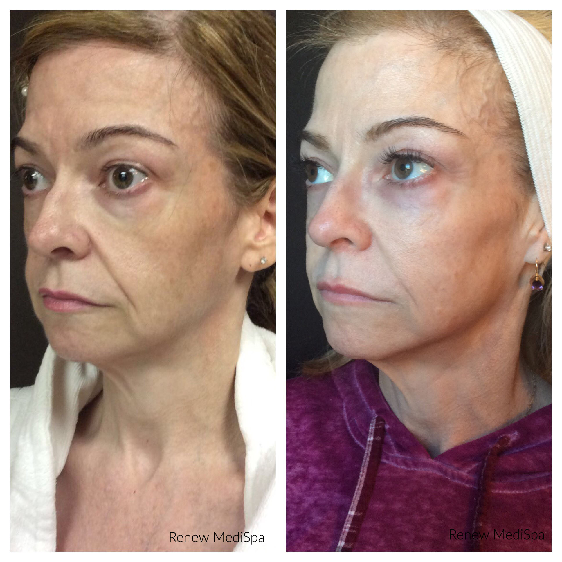 Skin Tightening Windham Nh For Jowls Amp Sagging Skin