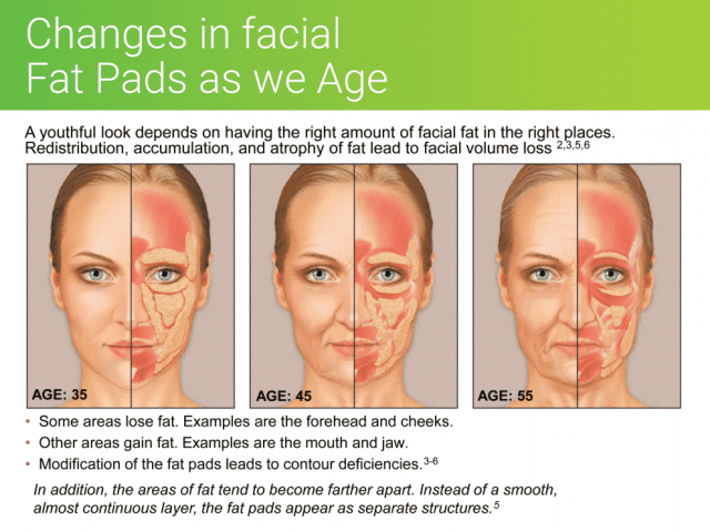 Illustration facial aging changes