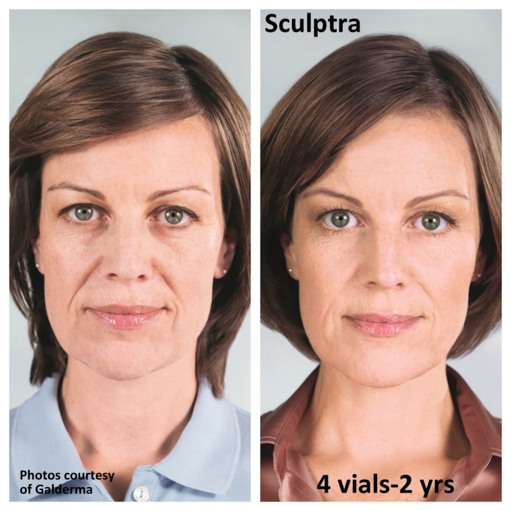 Sculptra Windham NH - for added facial volume | Dr  Lisa Vuich