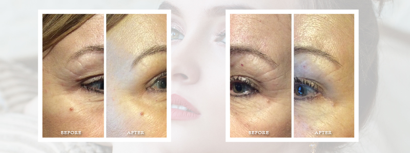 Renew New Hampshire - Eye Region Stimulate new collagen for up to 3 months