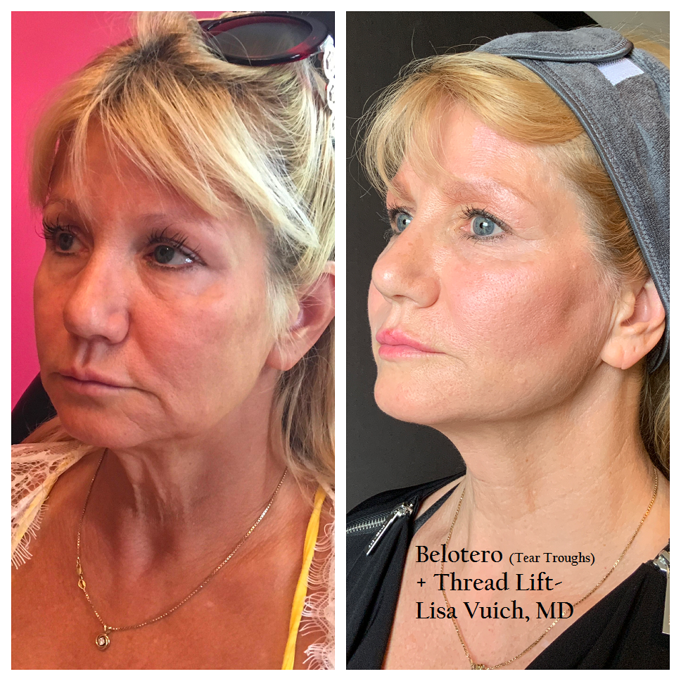 Thread Lift Windham Nh Reduce Wrinkle Appearance Renew