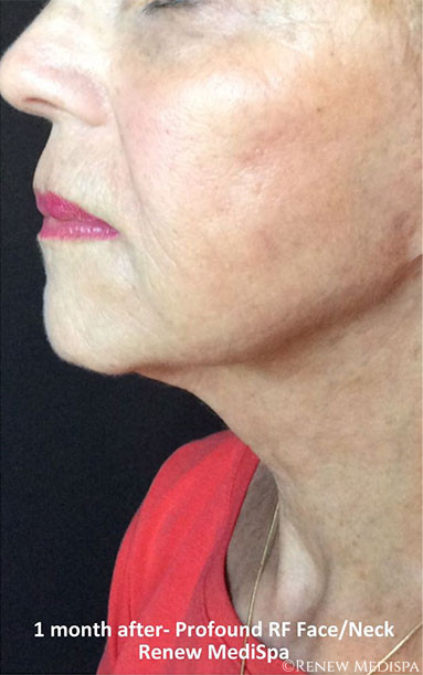 Ultherapy And Profound Rf  1728
